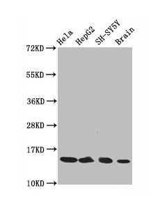 Western Blot Positive WB detected in:Hela whole cell lysate,HepG2 whole cell lysate,SH-SY5Y whole cell lysate,Rat brain tissue All lanes:Acetyl-Histone H3.1(K14)antibody at 0.75